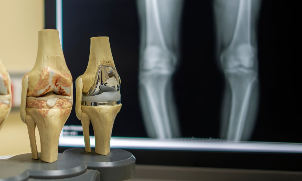 How to Avoid Knee Replacement and Choosing the Right Physical Therapist.