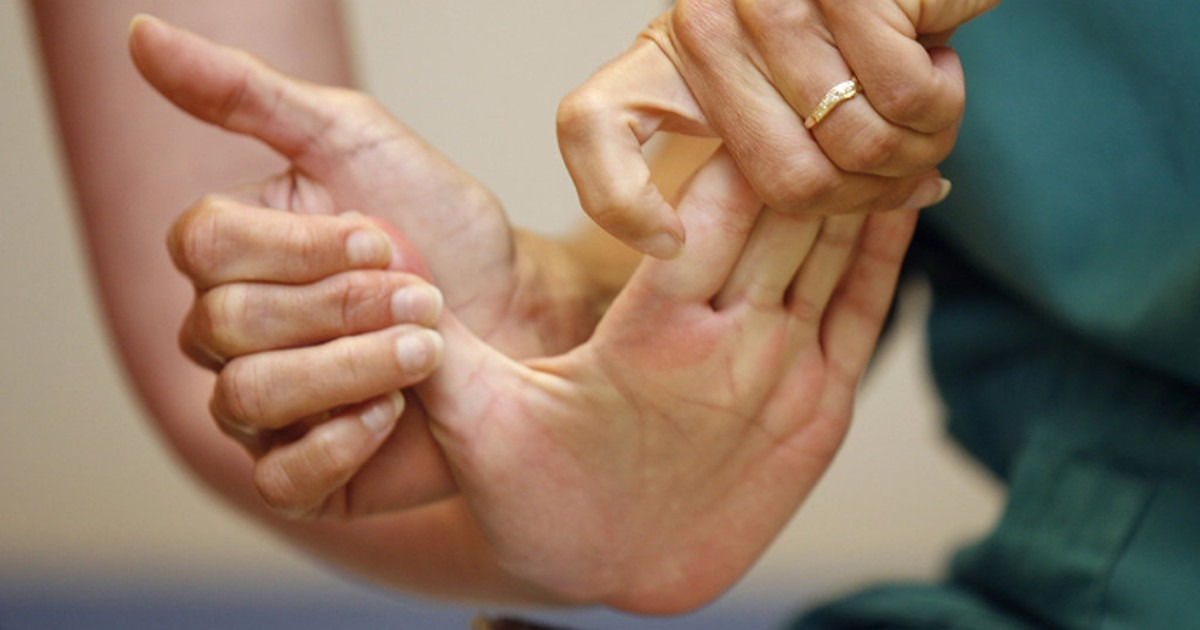 Major Physical Therapy Approaches to Stroke Rehabilitation.