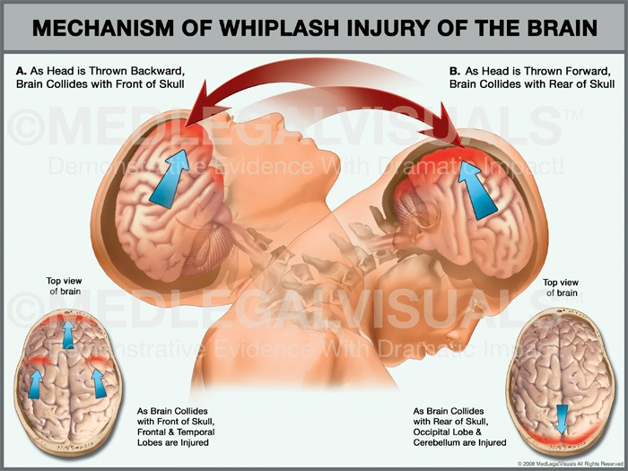 Whiplash: Symptoms, Causes, and Effective Physical Therapy Treatments.