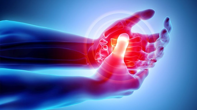 Arthritis: How Physical Therapy Can Help You Treat And Manage Arthritis Pain Without Medications.