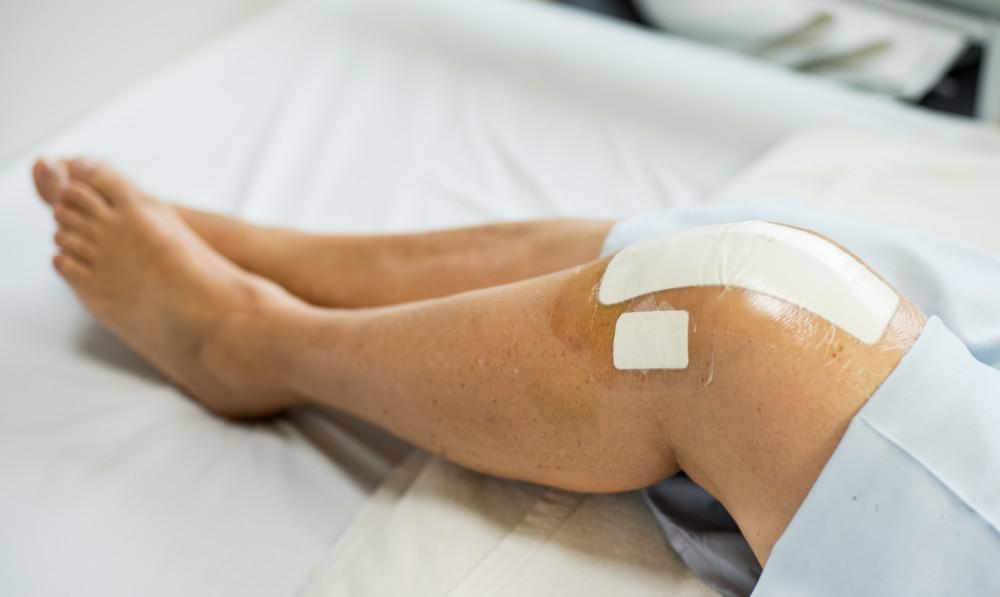 5 Effective Tips To Help Speed Your Recovery After a knee Replacement Surgery.