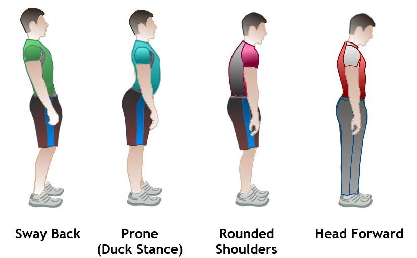 Six Essential Benefits Of Good Posture.