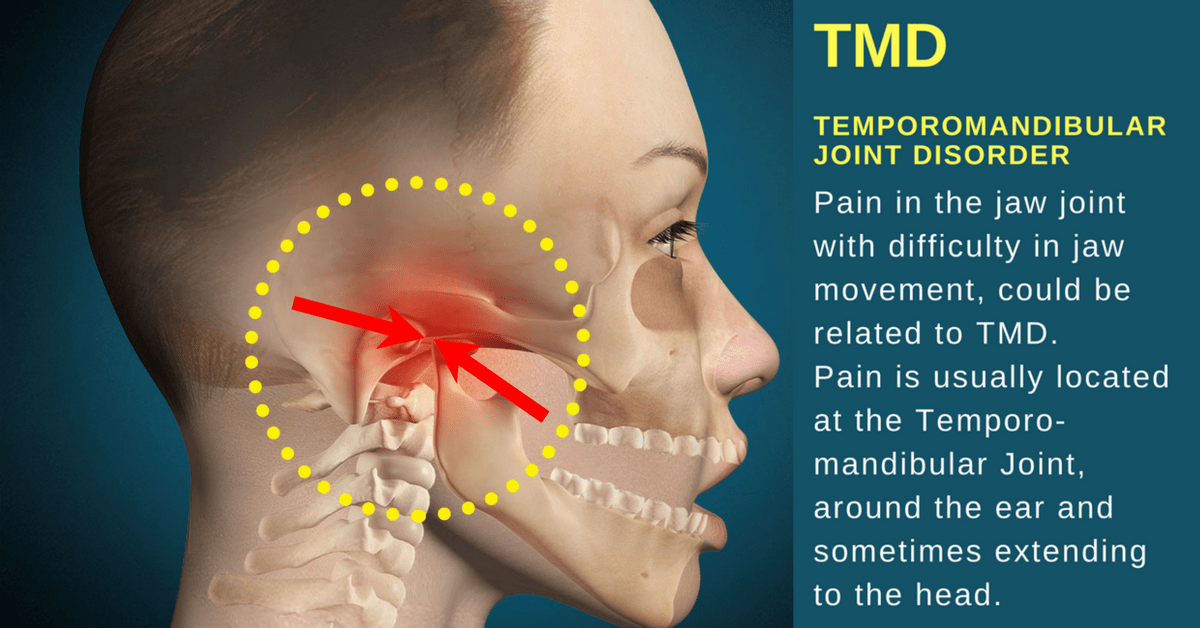 TMD: Causes, Symptoms, and Effective Physical Therapy Treatment.