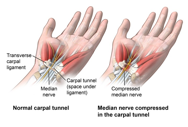 Essential Benefits of Chiropractic Care For Carpal Tunnel Syndrome(CTS).